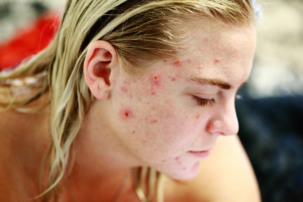 side view of woman's face with acne