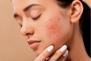 Woman Struggle with Perioral Dermatitis